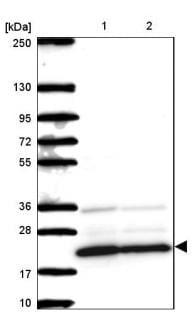 Western blot - Anti-Mimitin antibody - C-terminal (ab185374)