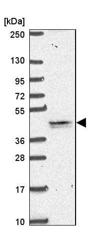 Western blot - Anti-TMEM79 antibody - N-terminal (ab185453)