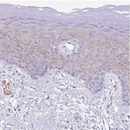 Immunohistochemistry (Formalin/PFA-fixed paraffin-embedded sections) - Anti-TMEM79 antibody - N-terminal (ab185453)