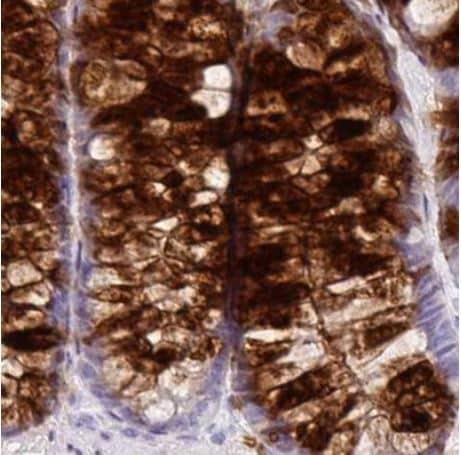 Immunohistochemistry (Formalin/PFA-fixed paraffin-embedded sections) - Anti-Secretory lectin ZG16 antibody (ab185483)