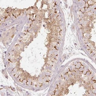 Immunohistochemistry (Formalin/PFA-fixed paraffin-embedded sections) - Anti-SLCO6A1 antibody (ab185501)