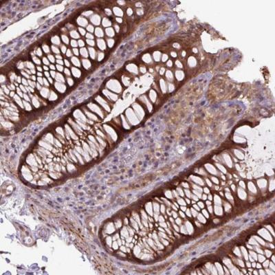 Immunohistochemistry (Formalin/PFA-fixed paraffin-embedded sections) - Anti-ZSWIM7 antibody - C-terminal (ab185506)