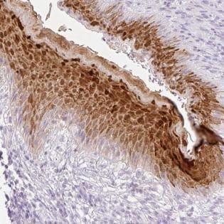 Immunohistochemistry (Formalin/PFA-fixed paraffin-embedded sections) - Anti-SPRR4 antibody (ab185511)
