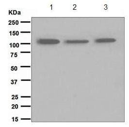 Western blot - Anti-TRPM8 antibody [EPR4196(2)] - BSA and Azide free (ab185529)