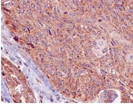 Immunohistochemistry (Formalin/PFA-fixed paraffin-embedded sections) - Anti-Methionyl Aminopeptidase 1/MAP 1 antibody [EPR15452(B)] (ab185540)
