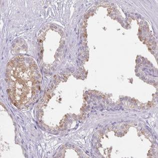Immunohistochemistry (Formalin/PFA-fixed paraffin-embedded sections) - Anti-SLC17A9 antibody - N-terminal (ab185576)