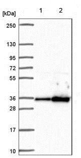Western blot - Anti-PYCR2 antibody (ab185578)