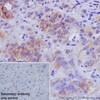 Immunohistochemistry (Formalin/PFA-fixed paraffin-embedded sections) - Anti-CYP2D6 antibody [EPR17868] (ab185625)