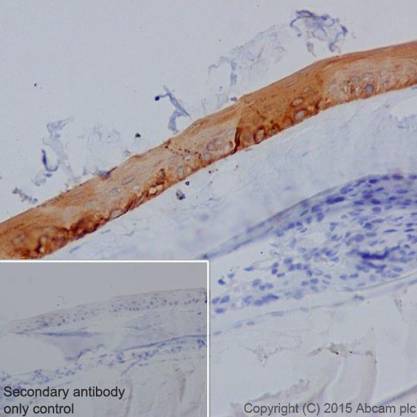 Immunohistochemistry (Formalin/PFA-fixed paraffin-embedded sections) - Anti-Keratin 12/K12 antibody [EPR17882] (ab185627)