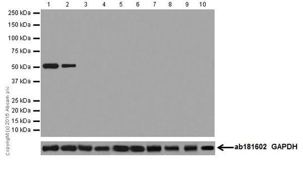 Western blot - Anti-Keratin 12/K12 antibody [EPR17882] (ab185627)