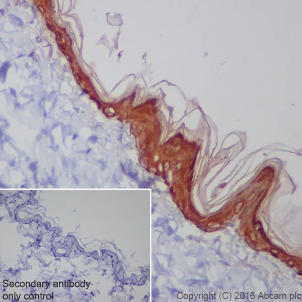 Immunohistochemistry (Formalin/PFA-fixed paraffin-embedded sections) - Anti-Cytokeratin 1 antibody [EPR17744] (ab185628)