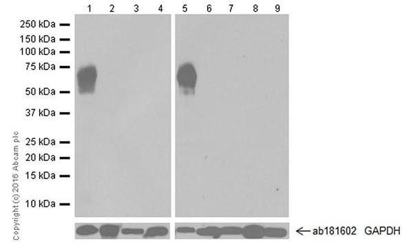 Western blot - Anti-Cytokeratin 1 antibody [EPR17744] (ab185628)