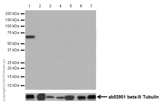 Western blot - Anti-Cytokeratin 1 antibody [EPR17870] (ab185629)