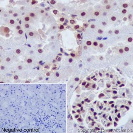 Immunohistochemistry (Formalin/PFA-fixed paraffin-embedded sections) - Anti-AKT1 + AKT2 + AKT3 antibody [EPR17671] (ab185633)