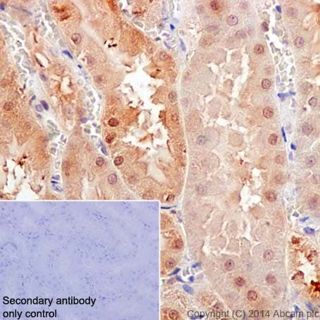 Immunohistochemistry (Formalin/PFA-fixed paraffin-embedded sections) - Anti-Caspase-6/CASP-6 antibody [EPR18046] (ab185646)