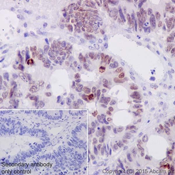 Immunohistochemistry (Formalin/PFA-fixed paraffin-embedded sections) - Anti-c-Myc (phospho S62) antibody [EPR17924] (ab185656)