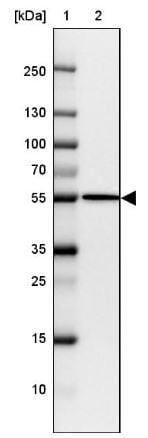 Western blot - Anti-FIGNL1 antibody (ab185674)