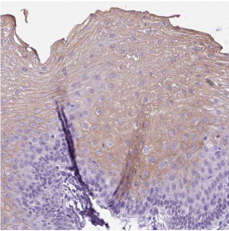 Immunohistochemistry (Formalin/PFA-fixed paraffin-embedded sections) - Anti-Uridine Phosphorylase 1 antibody (ab185680)