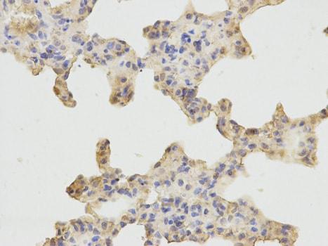 Immunohistochemistry (Formalin/PFA-fixed paraffin-embedded sections) - Anti-GEF H1 antibody (ab185697)