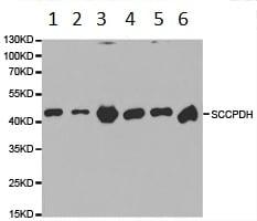 Western blot - Anti-SCCPDH antibody (ab185709)