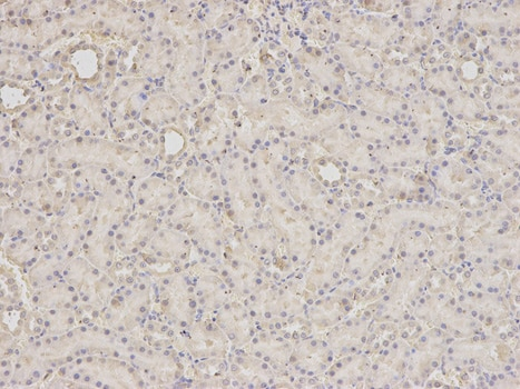 Immunohistochemistry (Formalin/PFA-fixed paraffin-embedded sections) - Anti-SCCPDH antibody (ab185709)