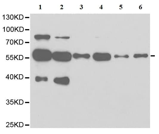 Western blot - Anti-LAP2 antibody (ab185718)
