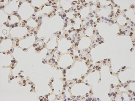 Immunohistochemistry (Formalin/PFA-fixed paraffin-embedded sections) - Anti-LAP2 antibody (ab185718)