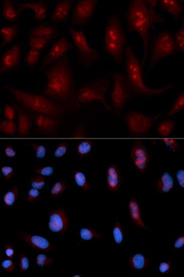 Immunocytochemistry/ Immunofluorescence - Anti-Phospholipase C beta 1/PLCB1 antibody - C-terminal (ab185724)