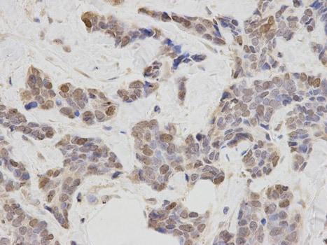 Immunohistochemistry (Formalin/PFA-fixed paraffin-embedded sections) - Anti-Phospholipase C beta 1/PLCB1 antibody - C-terminal (ab185724)