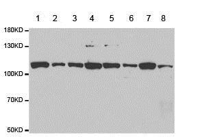 Western blot - Anti-SNF2H antibody (ab185725)