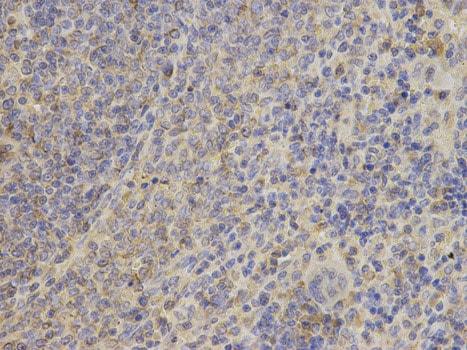 Immunohistochemistry (Formalin/PFA-fixed paraffin-embedded sections) - Anti-ACK1 antibody (ab185726)
