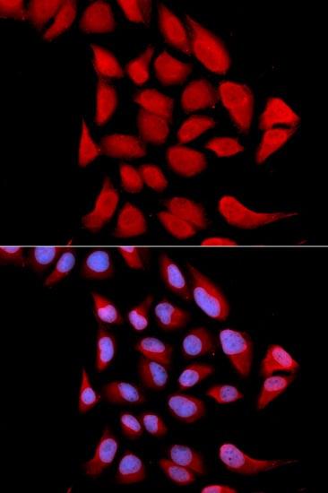 Immunocytochemistry/ Immunofluorescence - Anti-Proteasome subunit alpha type 6 antibody (ab185731)