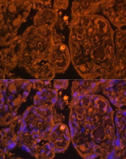 Immunocytochemistry/ Immunofluorescence - Anti-CD34 antibody (ab185732)