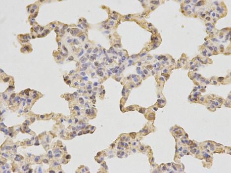 Immunohistochemistry (Formalin/PFA-fixed paraffin-embedded sections) - Anti-SH2D1A/SAP antibody (ab185810)