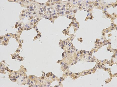 Immunohistochemistry (Formalin/PFA-fixed paraffin-embedded sections) - Anti-DNA Polymerase beta antibody (ab185818)