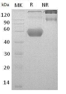 SDS-PAGE - Recombinant Mouse GITR protein (ab185843)