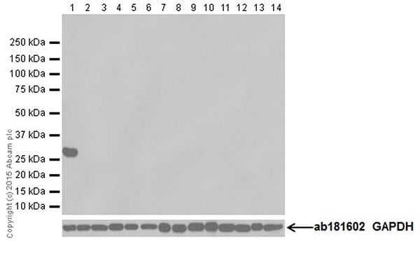 Western blot - Anti-RFP antibody [EPR18992] (ab185921)