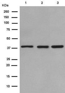Western blot - Anti-SAE1 antibody [EPR15397(B)] (ab185949)