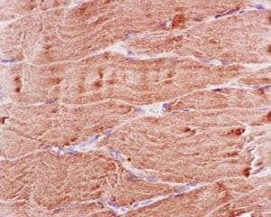 Immunohistochemistry (Formalin/PFA-fixed paraffin-embedded sections) - Anti-BIN1 antibody [EPR13463-25] (ab185950)
