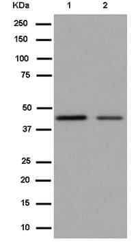Western blot - Anti-SCAMP1 antibody [EPR14493(B)] (ab185951)