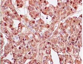 Immunohistochemistry (Formalin/PFA-fixed paraffin-embedded sections) - Anti-CYP1B1 antibody [EPR14972] - C-terminal (ab185954)