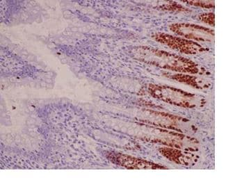 Immunohistochemistry (Formalin/PFA-fixed paraffin-embedded sections) - Anti-SOX9 antibody [EPR14335-78] (ab185966)