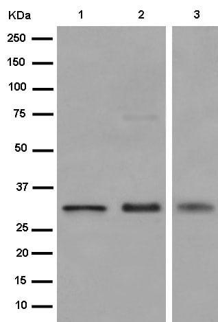 Western blot - Anti-Uroplakin Ia antibody [EPR15498] (ab185970)
