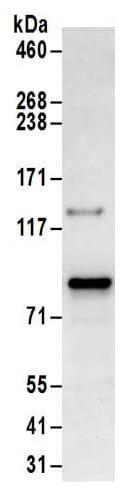 Immunoprecipitation - Anti-PKC theta/PRKCQ antibody (ab185973)