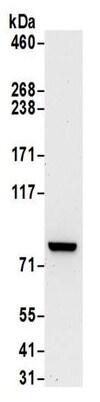 Western blot - Anti-PKC theta/PRKCQ antibody (ab185974)