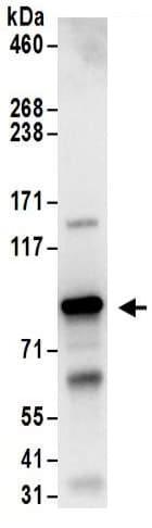 Immunoprecipitation - Anti-PKC theta/PRKCQ antibody (ab185974)