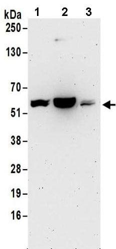 Western blot - Anti-DLC-A antibody - N-terminal (ab185994)