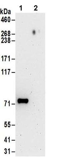 Immunoprecipitation - Anti-TRM1 antibody - C-terminal (ab185997)
