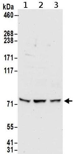 Western blot - Anti-METTL13 antibody (ab186002)