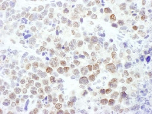 Immunohistochemistry (Formalin/PFA-fixed paraffin-embedded sections) - Anti-KMT6 / EZH2 antibody (ab186006)
